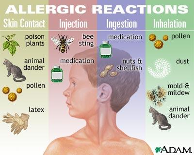 allergy specifics allergicchild. Black Bedroom Furniture Sets. Home Design Ideas