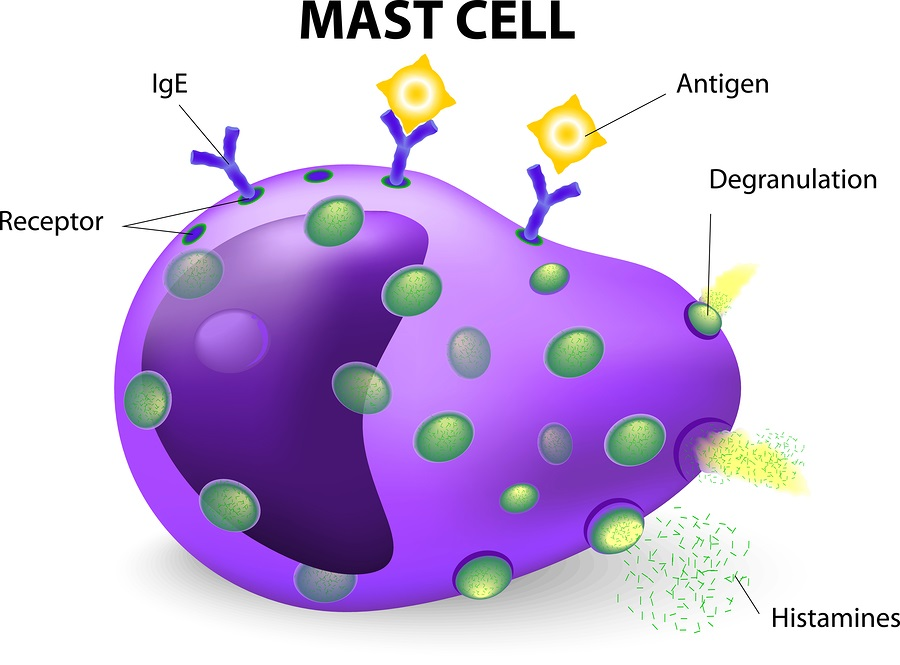 Stress and Mast Cell Activation   AllergicChild